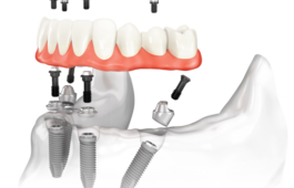 Новые зубы по технологии all-on-4